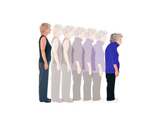 Osteoporosi-come-prevenirla-e-curarla