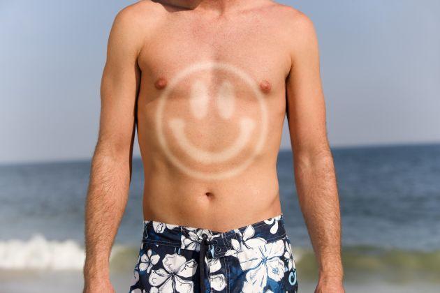 sunburn art 3