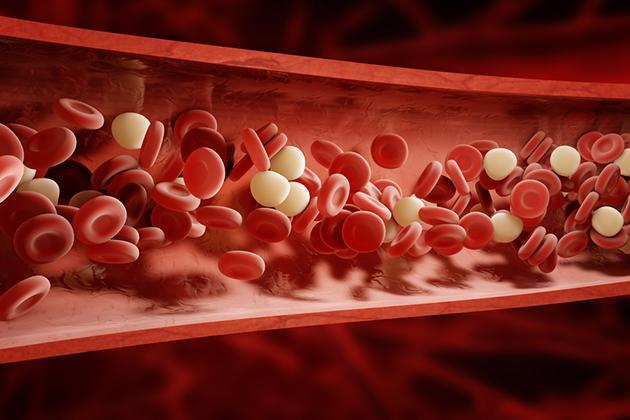 Piastrinopenia o piastrine basse: quando preoccuparsi? Cause, sintomi e cure
