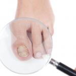 Onicodistrofia e onicomicosi, le patologie delle unghie più comuni