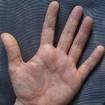 Disidrosi: cause, sintomi, cure e rimedi
