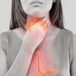 Laringite da reflusso: cause, sintomi, tempi di guarigione, rimedi e cure
