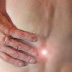 Radicolopatia: cause, sintomi, cura e rimedi casalinghi
